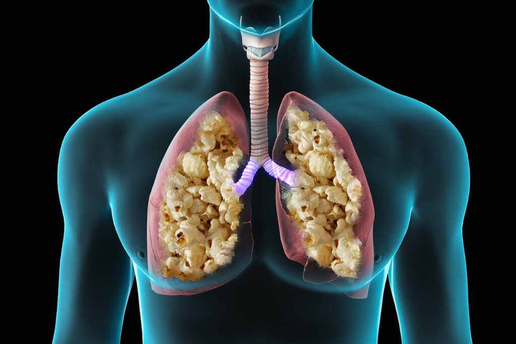 A animation of the literal meaning of Popcorn Lung.